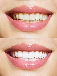 dental before and after 1