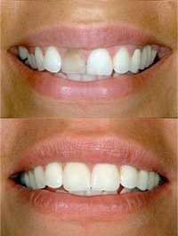 dental before and after 2