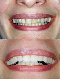 dental before and after 3