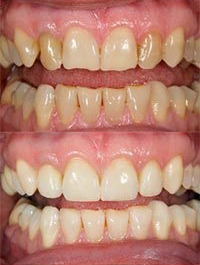 dental before and after 4