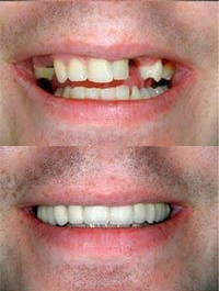dental before and after 5