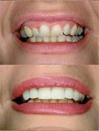 dental before and after 6