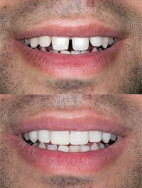 dental before and after 7