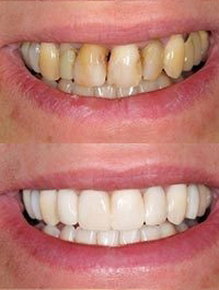dental before and after 8
